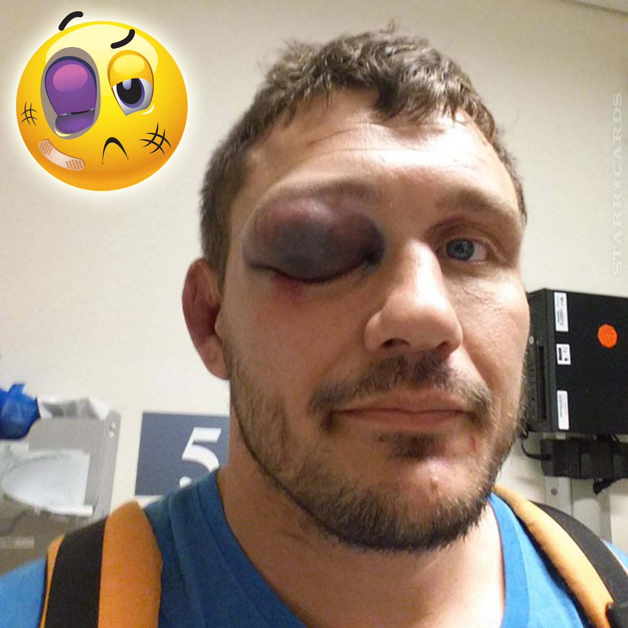 Matt Mitrione's eye swells up after fight with Travis Browne