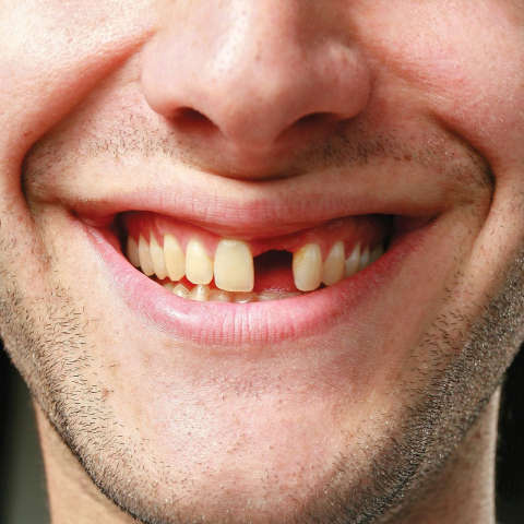 NHL's Daniel Sedin, Jaromir Jagr and NBA's Goran Dragic, Dennis Schroder lose teeth