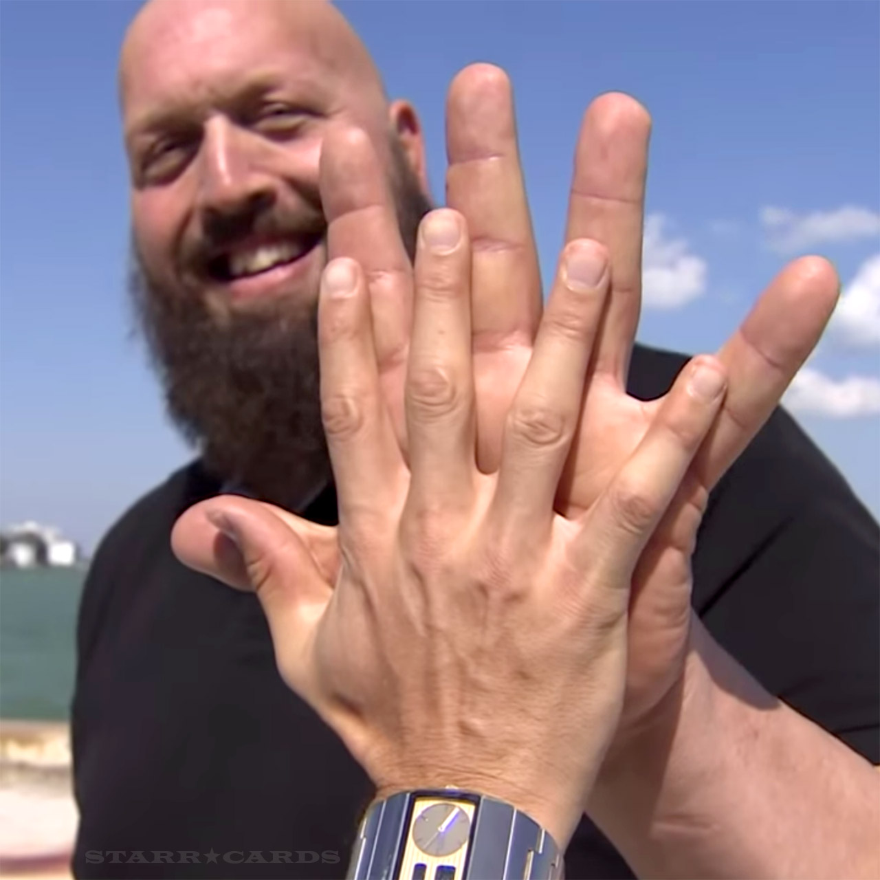 The Big Shows Hand Is More Than Twice As That Of A Normal Adult